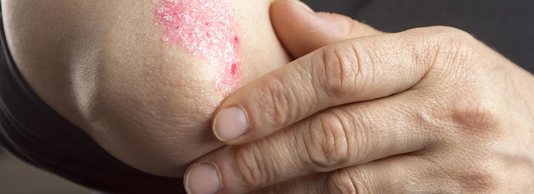 psoriasis sans ordonnance