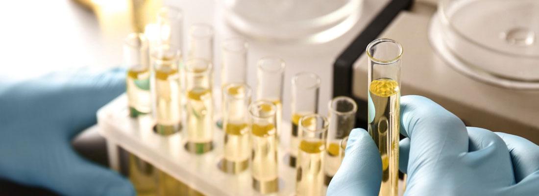 Infection des voies urinaires